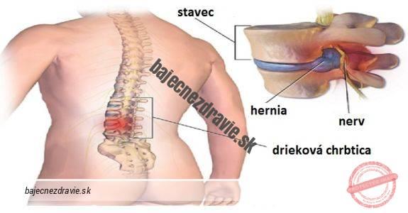 bolest-chrbta